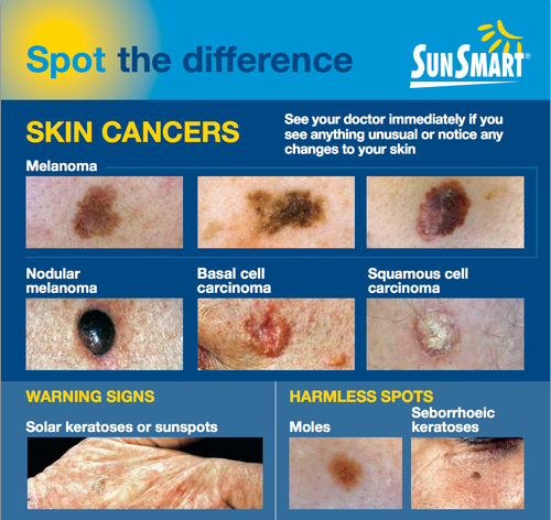 Sun Smart Skin Cancers