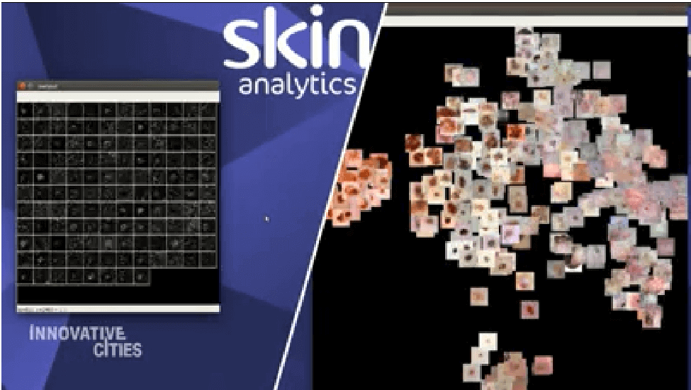 Skin Analytics on CNN